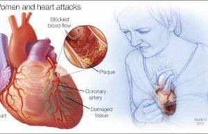 инфаркт