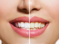 зъби, пожълтяване