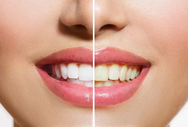 зъби, пожълтяване Ябълковият оцет
